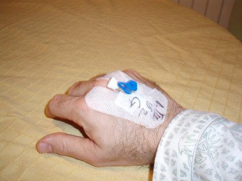 Foto de mi mano con un  cateter intravenoso tipo abbocath